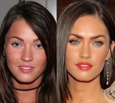 Megan a aussi testé la chirurgie esthétique ...